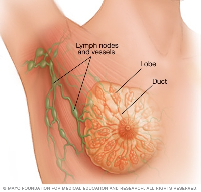 Breast Cancer: How to Prevent Breast Cancer
