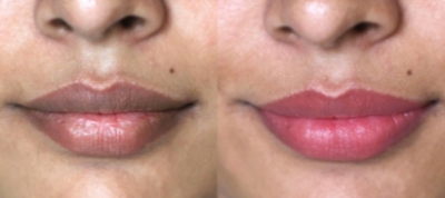 How to remove blackness from lips in 7 days